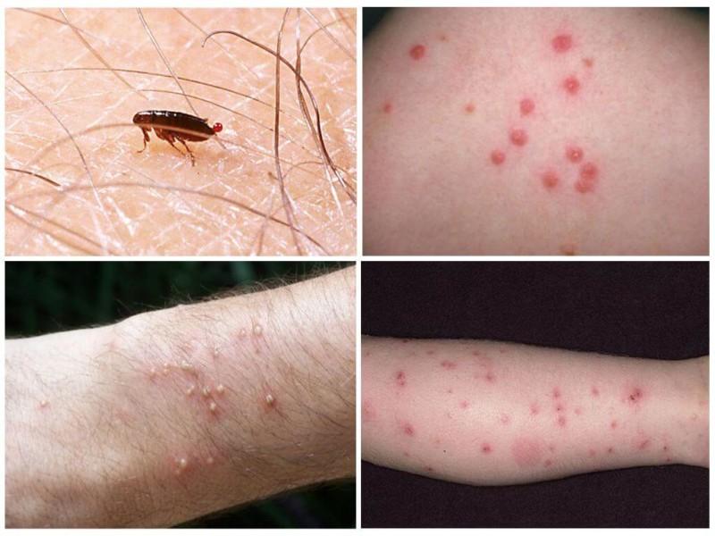 okoznak pikkelysömörbetegséget vaszkuláris vörös foltok a lábakon kezelés