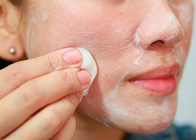 hogyan lehet megtisztítani az arcát a vörös foltoktól hogyan lehet eltávolítani a vörös foltokat az arcon a sebektől