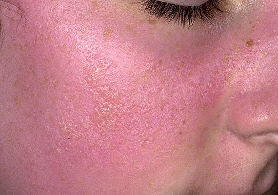 irritáció az arcon vörös foltok formájában a férfiaknál