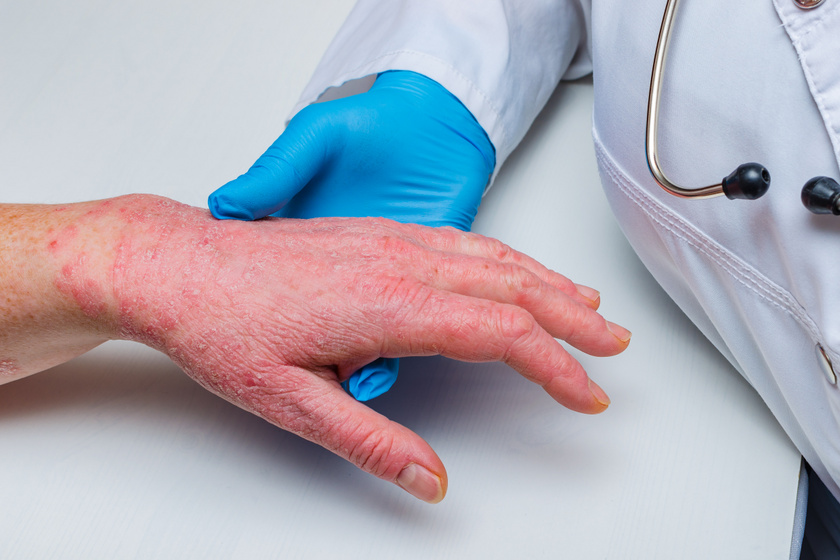 pikkelysömör a fejn hogyan kezelhetk a tneteket az arc pelyhes viszkető és vörös foltok