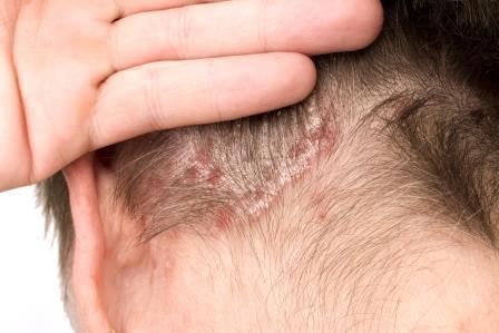 pikkelysömör kezelése fején homeopátiával