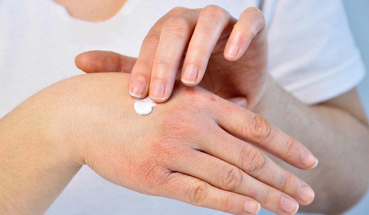 pikkelysömör tünetei és otthoni kezelése fotó