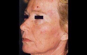 Ekcéma vagy bőrrák? Nem mindegy, hogy néz ki a folt a bőrön - Egészség | Femina