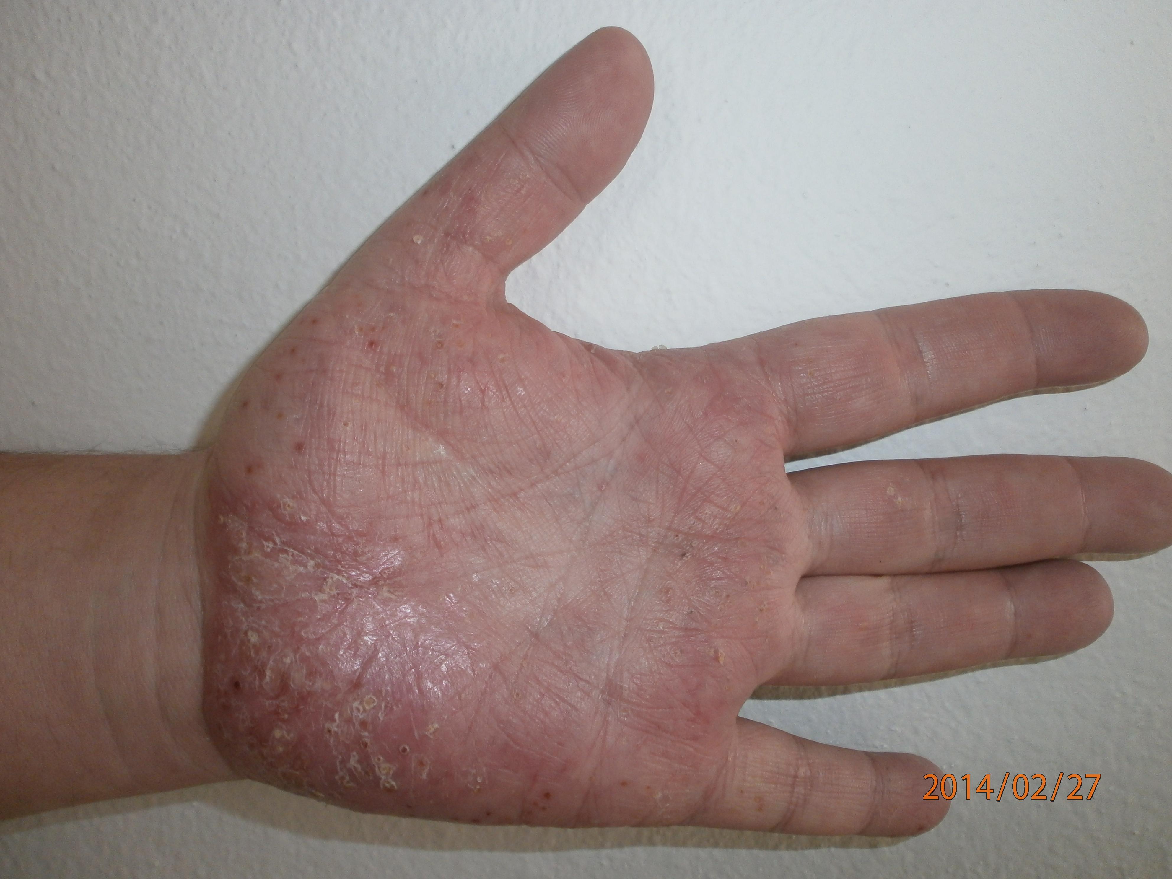 tenyér kezelése pikkelysömörre kréta pikkelysömör kezelése