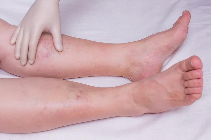 vörös foltok az ujjak és a lábujjak között)