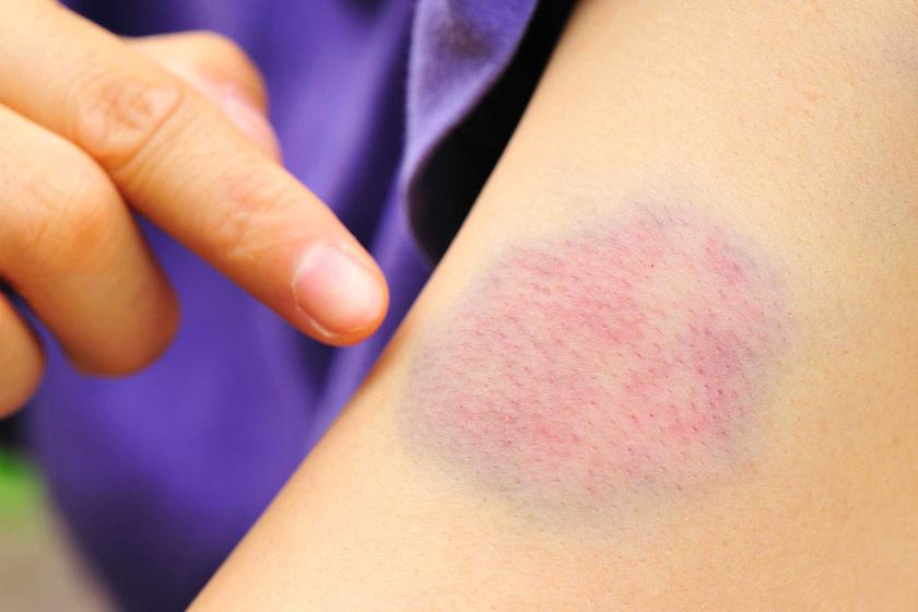 Milyen betegségre utalnak a vörös foltok? - A testen különböző méretű vörös foltok viszketnek