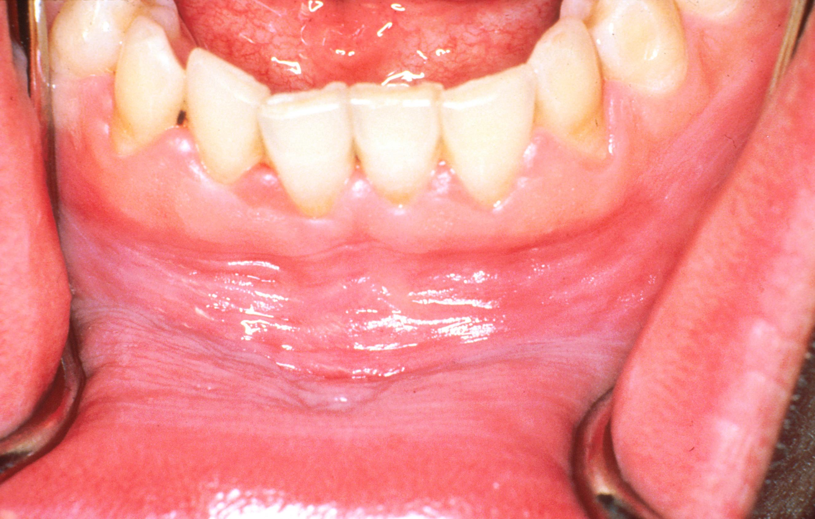 vörös foltok a szájban a szájban hogyan kell kezelni