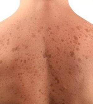 vörös foltok jelentek meg a bőrön a nap után duzzanat az arcon és vörös foltok