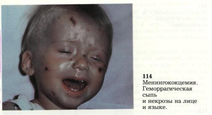 milyen vörös foltok jelennek meg az arcon élénkpiros foltok a bőrön