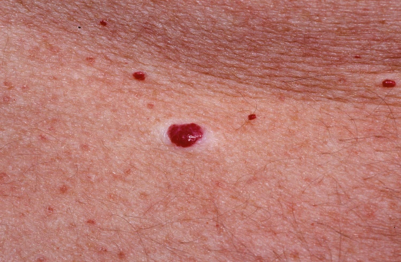 vörös foltok oka a fejbőrön Spain psoriasis kezelése