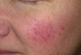 vörös foltok okai az arcon pikkelysömör kezelése usa
